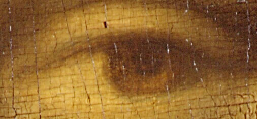 左目の拡大画像